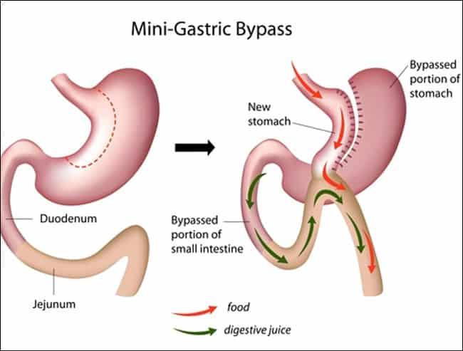 6274b8b63 هل تتم عملية تحويل مسار المعدة لـ(علاج مرض السكر) بالمنظار الجراحي ...