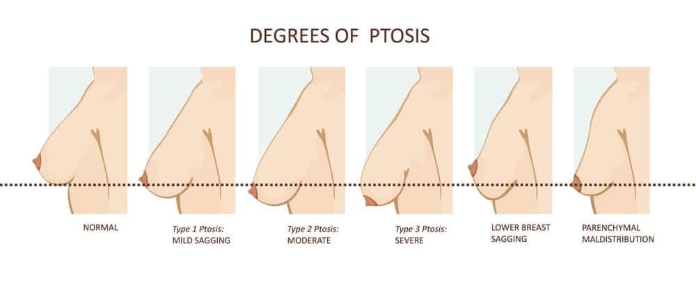 تعليمات ما قبل عملية تكبير الثدي